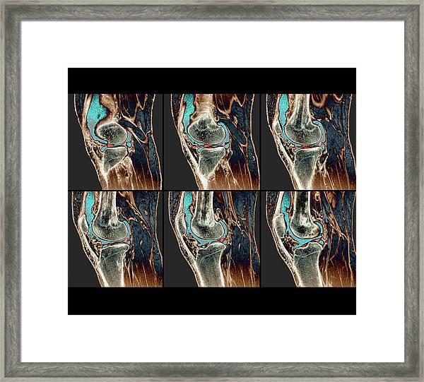 Knee Sprain Framed Print