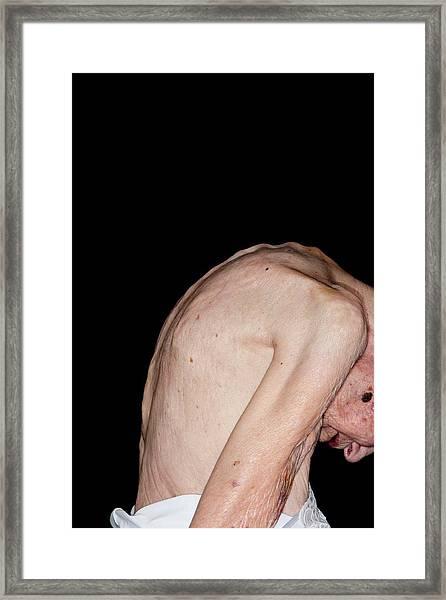 Kyphosis (curvature) Of The Spine Framed Print