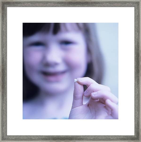 Loss Of Milk Teeth Framed Print by Mark Thomas/science Photo Library