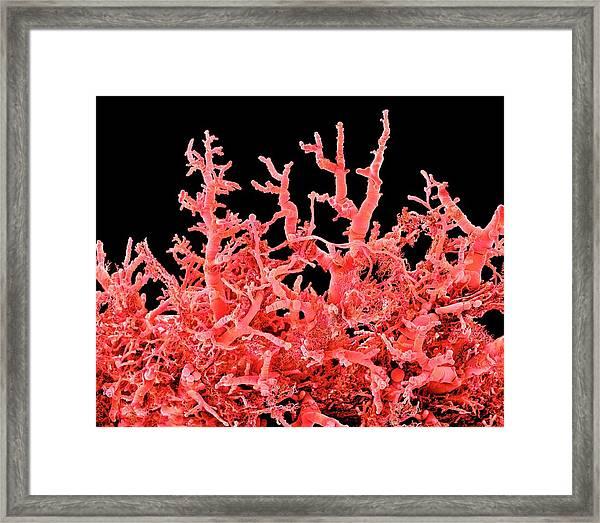Lung Blood Vessels Framed Print by Susumu Nishinaga
