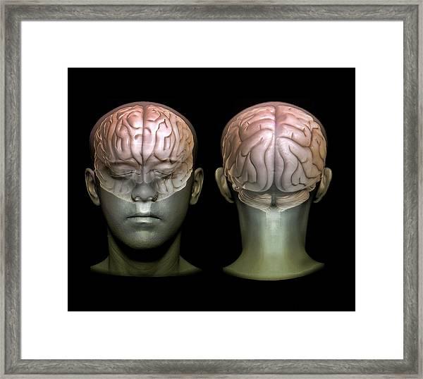 Normal Brain Framed Print