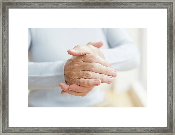 Senior Woman's Hands Framed Print by Science Photo Library