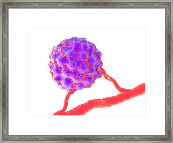 Tumour Framed Print by Alfred Pasieka