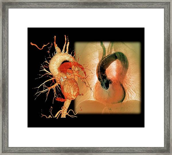 Aortic Aneurysm In Hypertension Framed Print