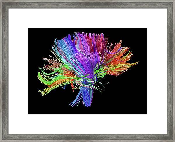 White Matter Fibres Of The Human Brain Framed Print