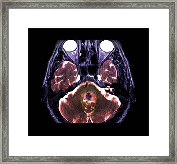 Brain Haemorrhage Framed Print