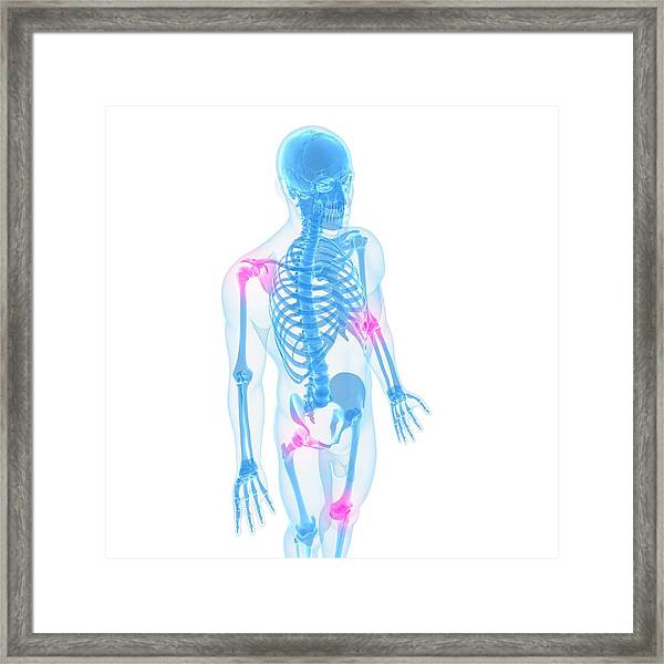 Joint Pain, Conceptual Artwork Framed Print