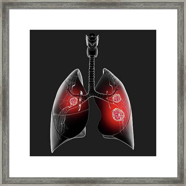 Lung Cancer Framed Print by Pixologicstudio/science Photo Library