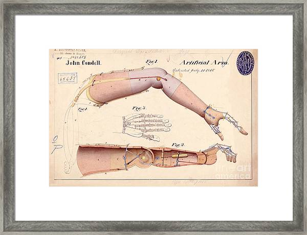 1865 Artificial Limbs Patent Drawing Framed Print