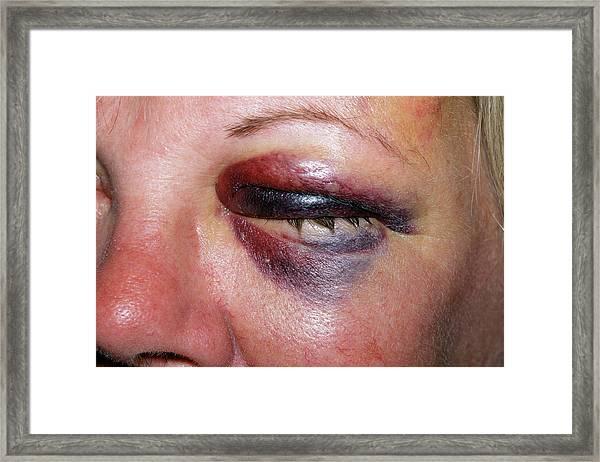 Black Eye Framed Print