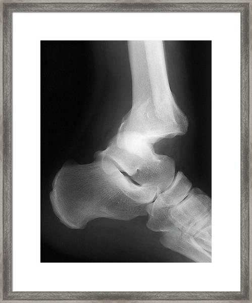 Fractured Ankle Framed Print