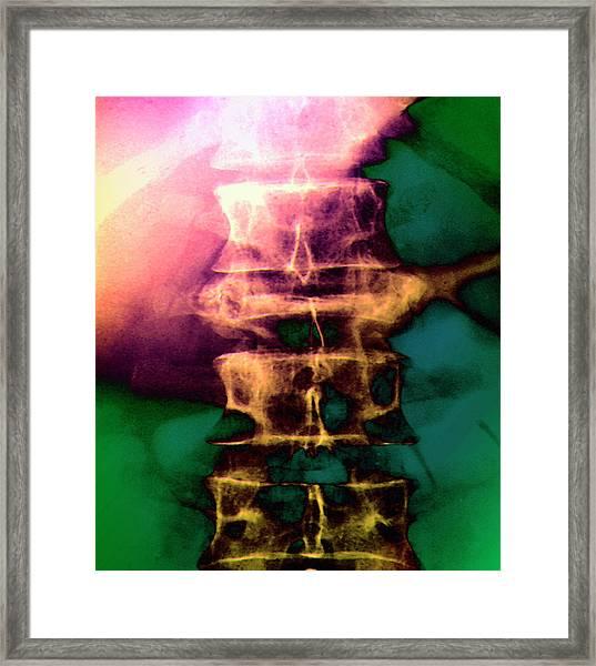Osteoporosis Of Spine Framed Print