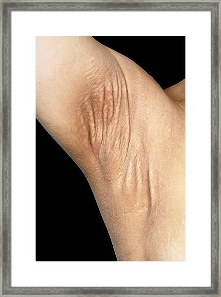 Pseudoxanthoma Elasticum Framed Print