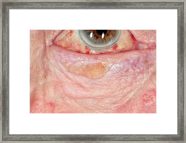 Seborrheic Keratosis by Dr P  Marazzi/science Photo Library
