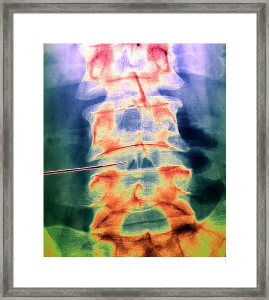 Slipped Disc Treatment Framed Print