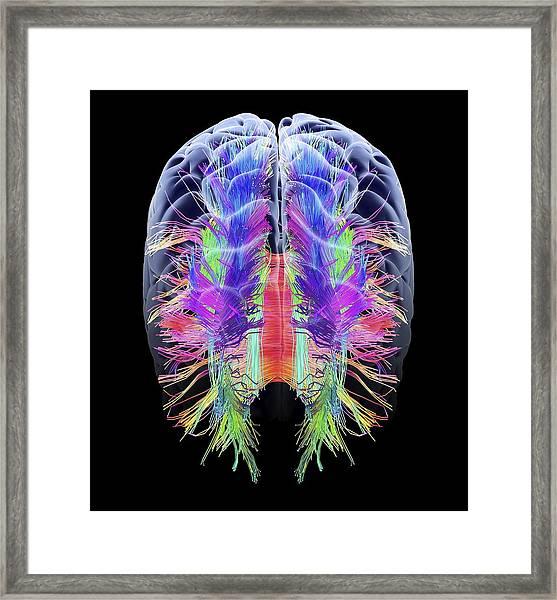 White Matter Fibres And Brain, Artwork Framed Print