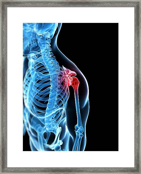Human Shoulder Pain Framed Print by Sebastian Kaulitzki