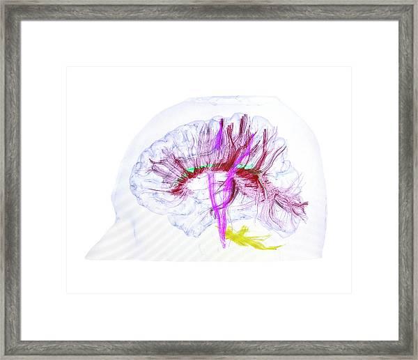Advanced Mri Brain Scan Framed Print