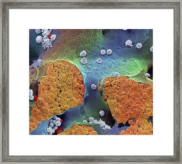 Bone Marrow Framed Print by Steve Gschmeissner