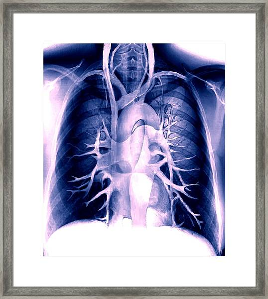 Chest Blood Vessels Framed Print