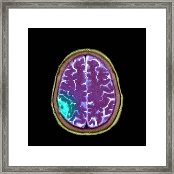 Meningioma Tumour Framed Print by Simon Fraser/science Photo Library