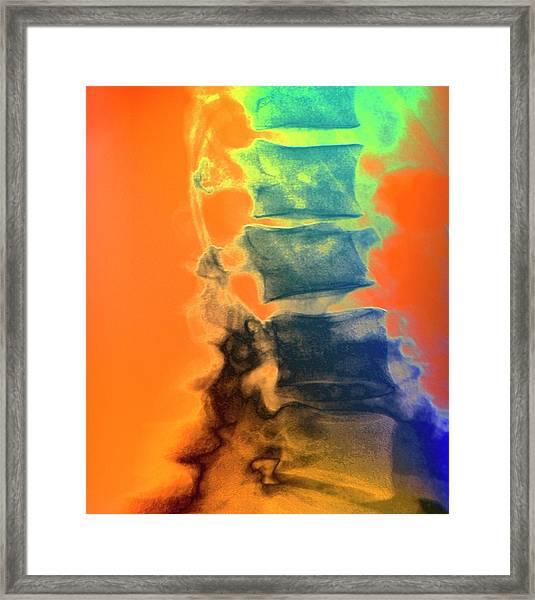 Osteoporotic Spine Framed Print