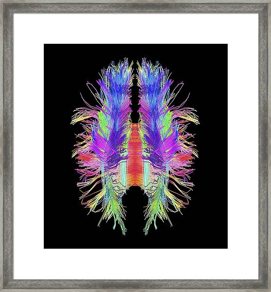 White Matter Fibres And Brain, Artwork Framed Print