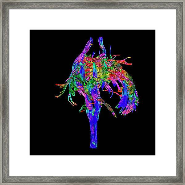 Brain Tumour Framed Print by Simon Fraser/science Photo Library