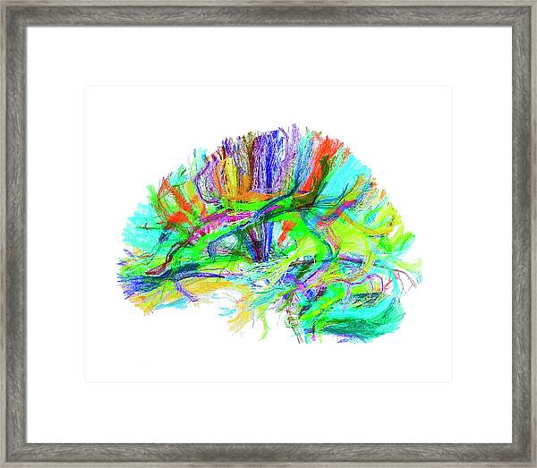 Advanced Mri Brain Scan Framed Print by Philippe Psaila/science Photo Library