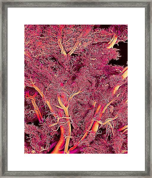 Blood Vessels Framed Print by Susumu Nishinaga