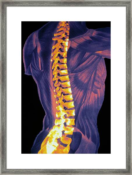 Coloured 3-d Ct Scan Of The Human Spine Framed Print
