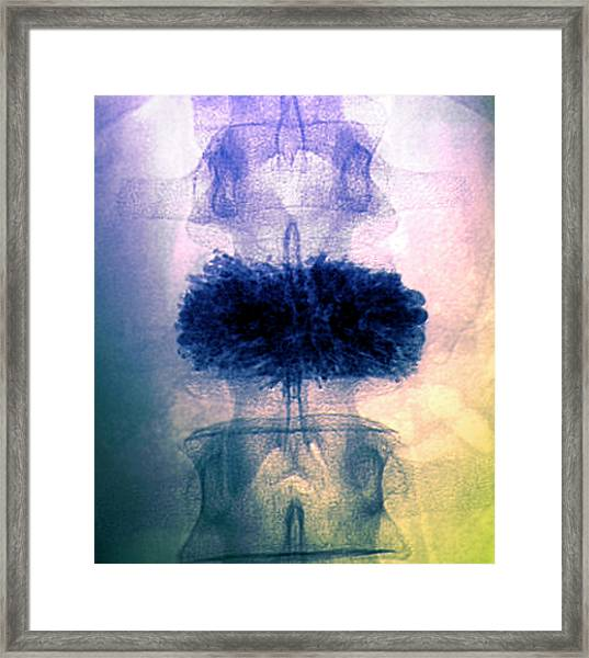 Spinal Collapse Treatment Framed Print