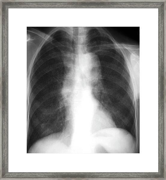 Aortic Aneurysm Framed Print