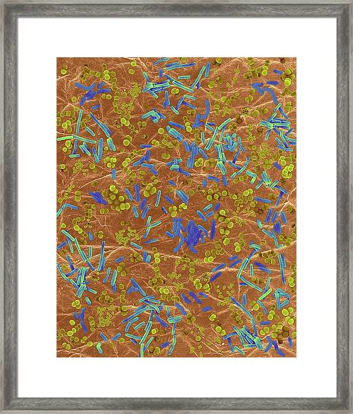 Bacteria On Human Skin Framed Print by Dennis Kunkel Microscopy/science Photo Library