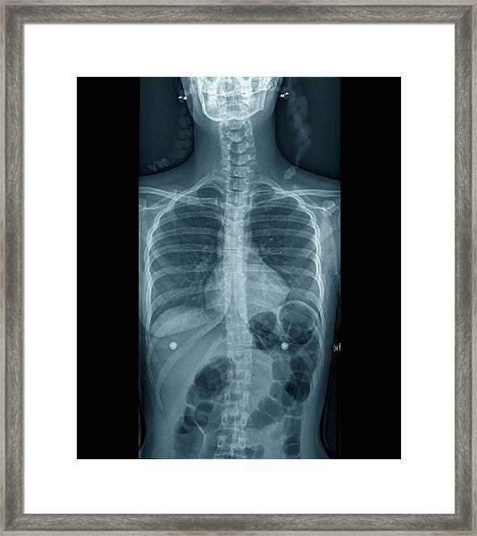 Scoliosis Framed Print