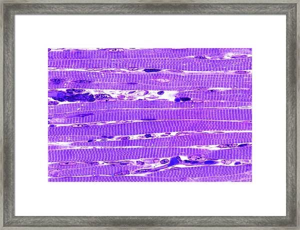 Skeletal Muscle Framed Print by Microscape