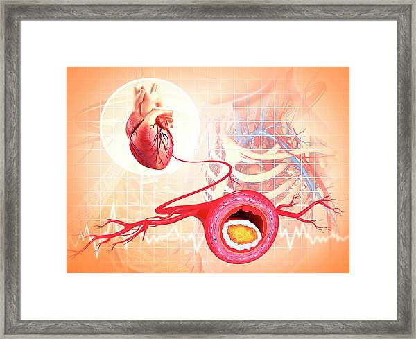 Atherosclerosis Framed Print by Pixologicstudio/science Photo Library