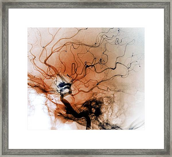 Cerebral Aneurysm Framed Print by Zephyr/science Photo Library