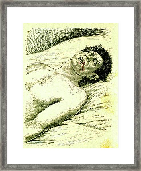 A Subject Suffering From Epilepsy Framed Print