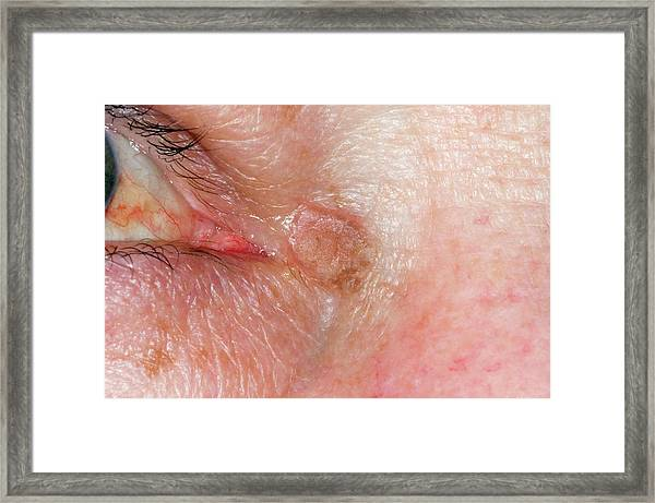 Actinic Keratosis Near The Eye by Dr P  Marazzi/science Photo Library
