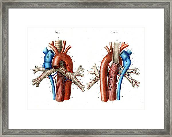 Aortic Arch Framed Print