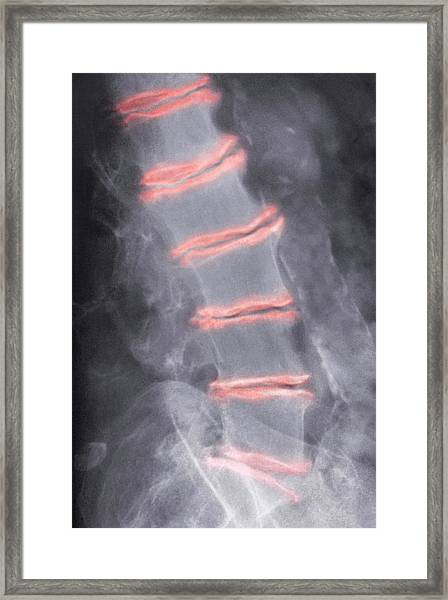 Arthritis Of The Back Framed Print