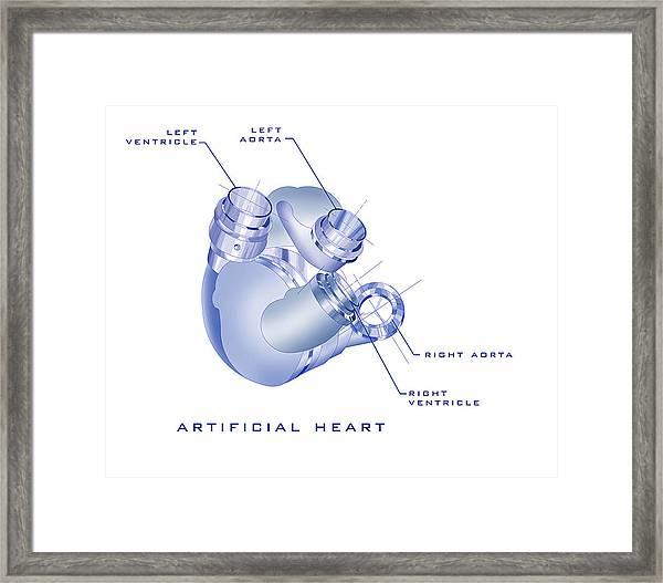 Artificial Heart Framed Print