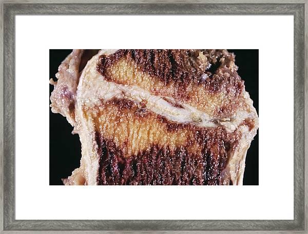 Backbone Fat Deposition Framed Print