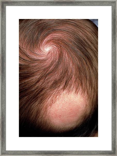 Bald Patch On The Back Of 3 Month Old Baby's Head Framed Print by Pascal Goetgheluck/science Photo Library