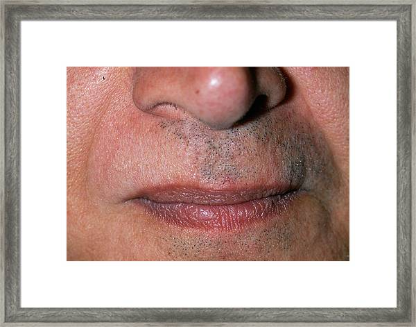 Baldness Framed Print by Dr P. Marazzi/science Photo Library