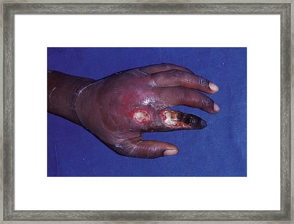 Bite Injury Framed Print