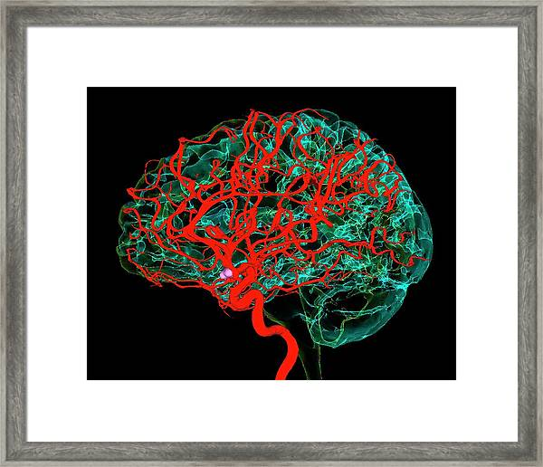 Blood Vessels Supplying The Brain Framed Print by K H Fung/science Photo Library