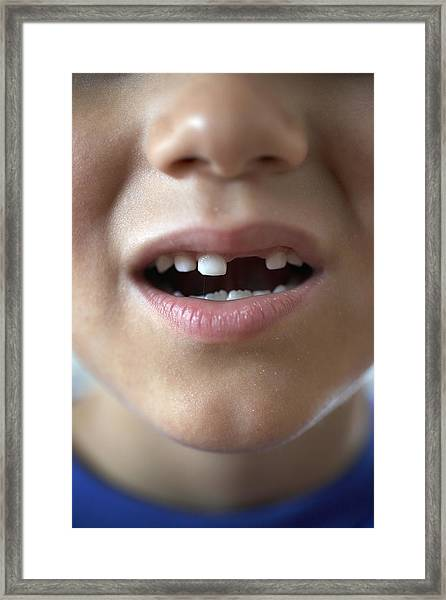 Boy (6-8) With Gap In Teeth, Close-up Framed Print by Thomas Northcut