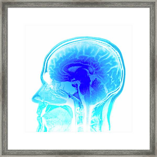 Brain Anatomy Framed Print by Pasieka